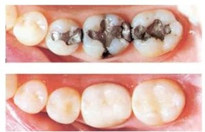 Composite Fillings fort worth