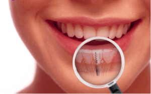 Credit: Cosmeticdentistrycenter